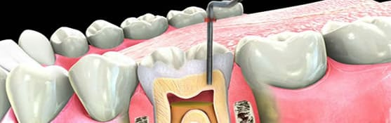Root Canal Specialist in Gurgaon